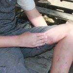Paintball bruise resize 2